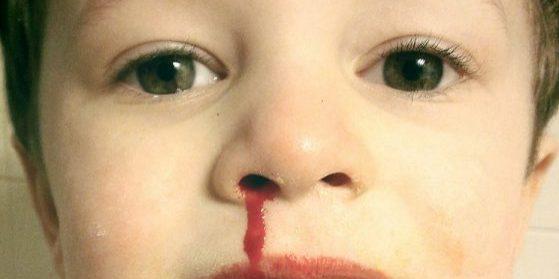 Hemorragia Nasal Epistaxis
